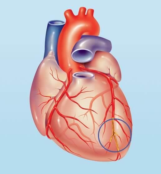 Quiz: Das Herz-Kreislauf-System – kennen Sie sich aus ...